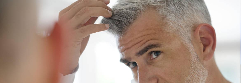 trattamento dell'alopecea