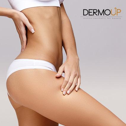trattamento corpo dermoup
