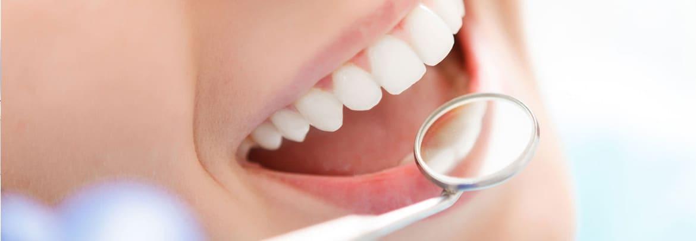 impianti dentali rimini